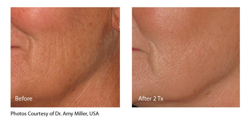 infini_miller_cheek_beforeandafter-01