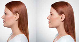 define your jawline with Kybella skin tightening injections in Laguna Beach, CA