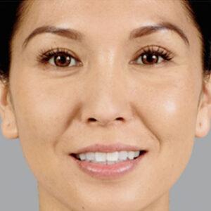 dermal filler treatment results in Laguna Beach, CA