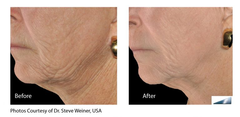 treatments for beauty above the mask in laguna beach, CA