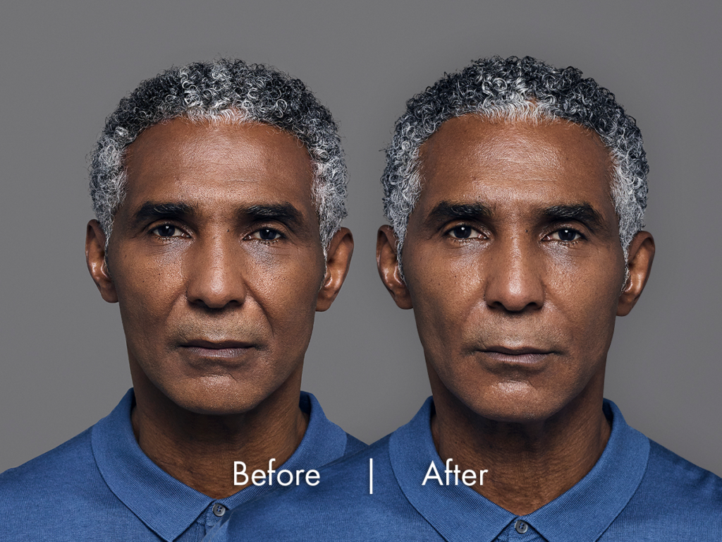 Image comparing face of an African male after having RHA Dermal fillers for dynamic wrinkles, RHA fillers have removed frown lines and other dynamic wrinkles, Long Beach, CA