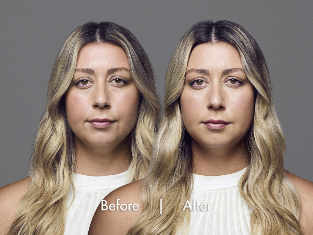 Image comparing face of a white female, before and after she has RHA Dermal fillers, her face looks a lot more fresh and youthful after having the injectables, Long beach, CA