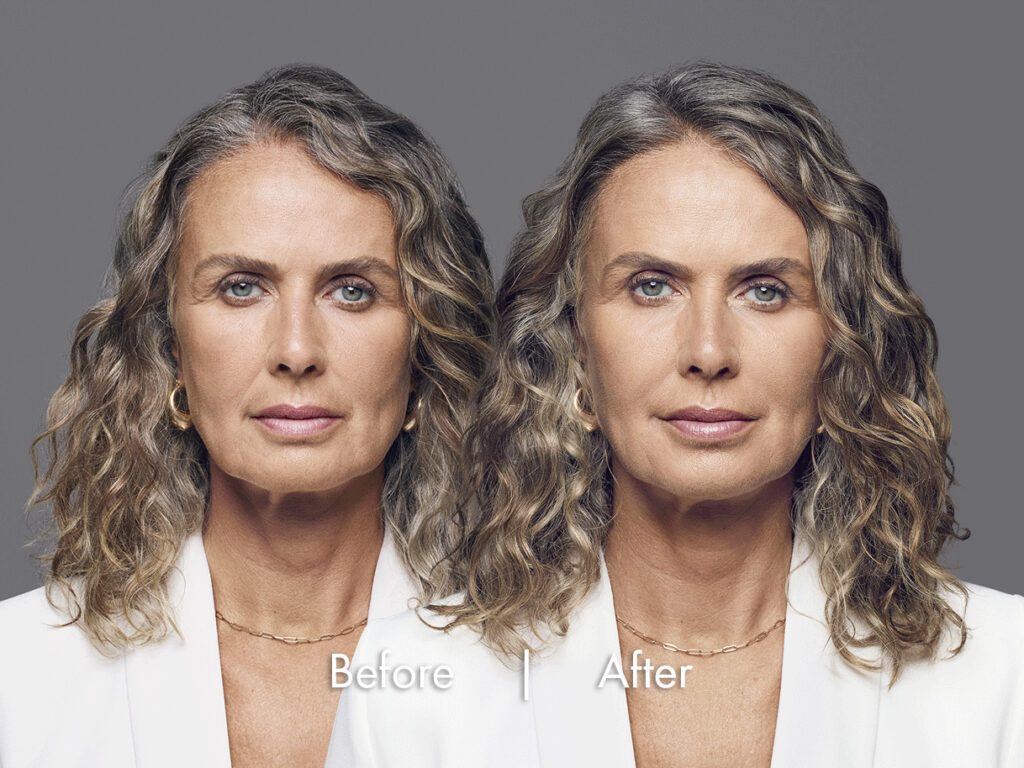 Image showing mark improvement getting rid of frown lines, crow's feet and other facial wrinkles after an older female had dermal fillers, Long beach, CA