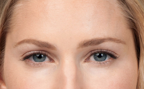 results from Botox for cosmetic reasons in Laguna Beach