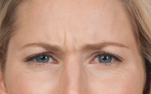 image of patient before receiving botox injections for cosmetic purposes in Laguna Beach, CA