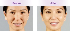 before and after injectables results for blog about tips to make injectable results last longer in Laguna Beach, CA