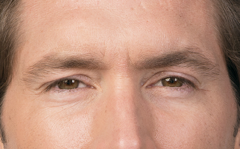 male wrinkle relaxer treatment results in Laguna Beach, CA
